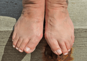 When Do Bunions Need to Be Operated On